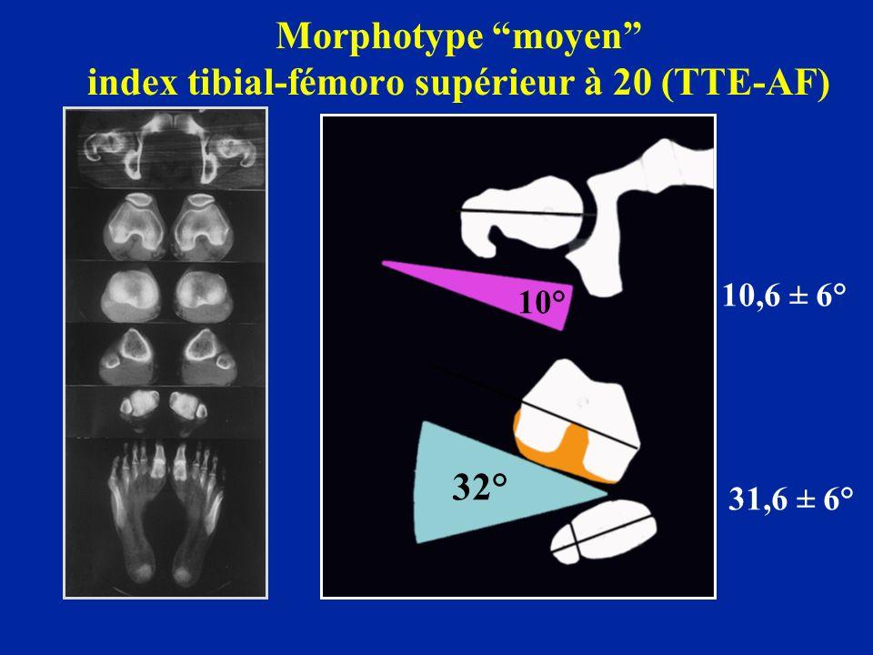 Morphotype moyen index tibial-fémoro supérieur à 20 (TTE-AF) 10° 32° 10,6 ± 6° 31,6 ± 6°