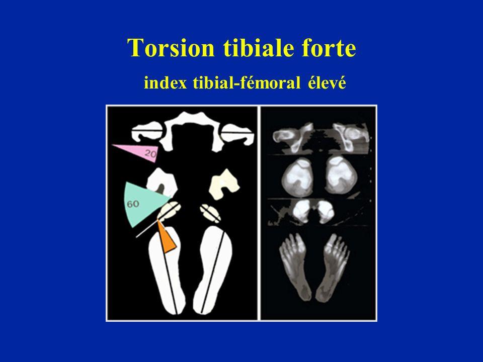 Torsion tibiale forte index tibial-fémoral élevé