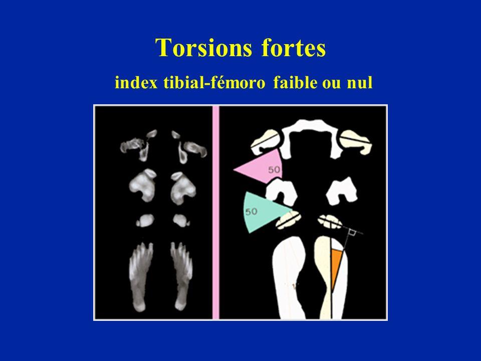 Torsions fortes index tibial-fémoro faible ou nul