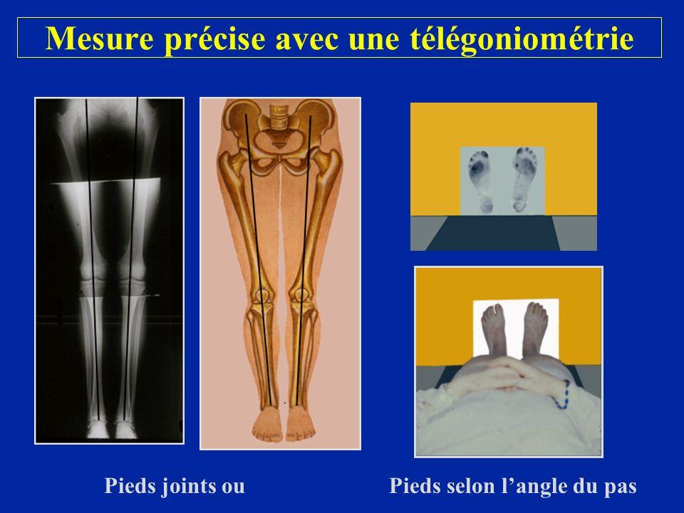 Mesure précise avec une télégoniométrie Pieds joints ou Pieds selon langle du pas
