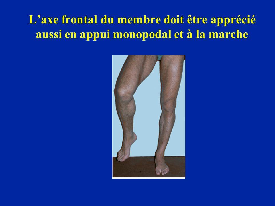 Laxe frontal du membre doit être apprécié aussi en appui monopodal et à la marche