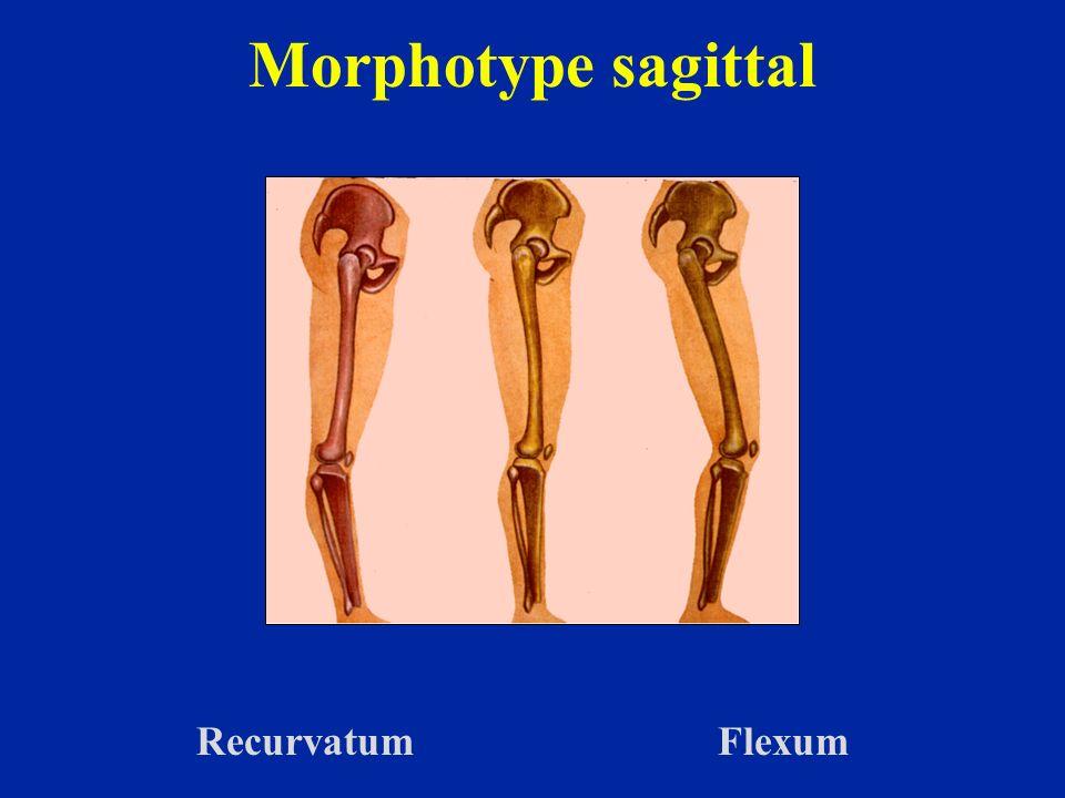 Le recurvatum augmente lécart entre les condyles en raison de la rotation interne des genoux Ceci est lié à la rotation automatique qui accompagne la flexion extension du genou