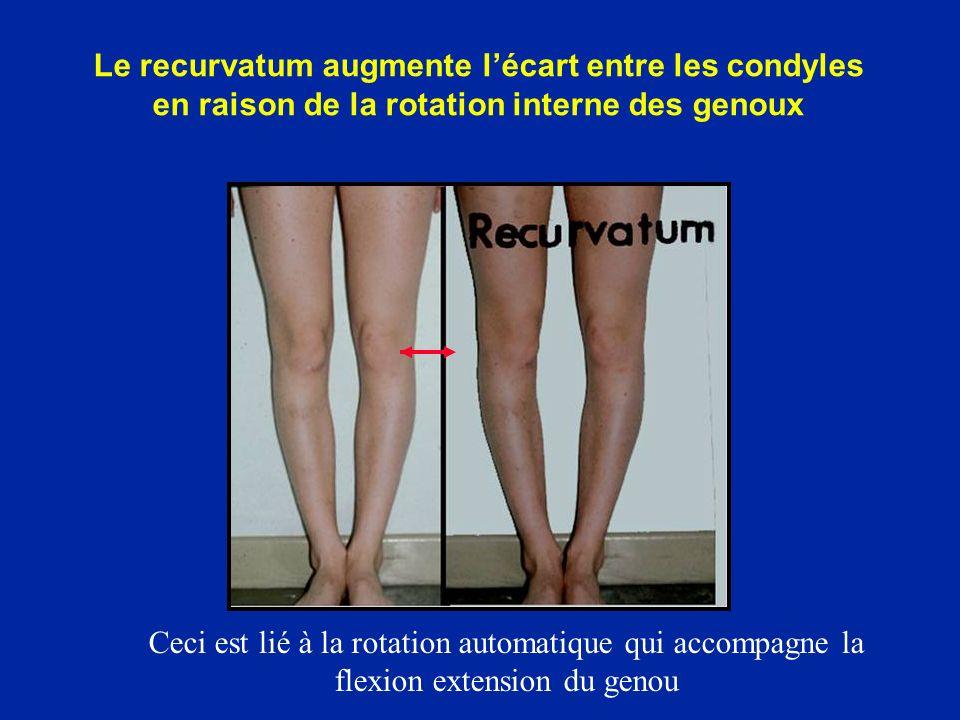 Le recurvatum augmente lécart entre les condyles en raison de la rotation interne des genoux Ceci est lié à la rotation automatique qui accompagne la