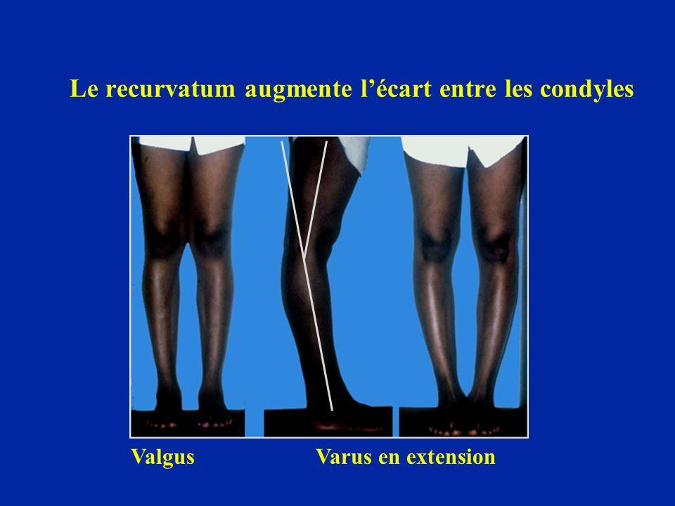 On peut prendre les empreintes lors de la marche et les juxtaposer afin de disposer les pieds du patient sur ses propres empreintes lors du scanner