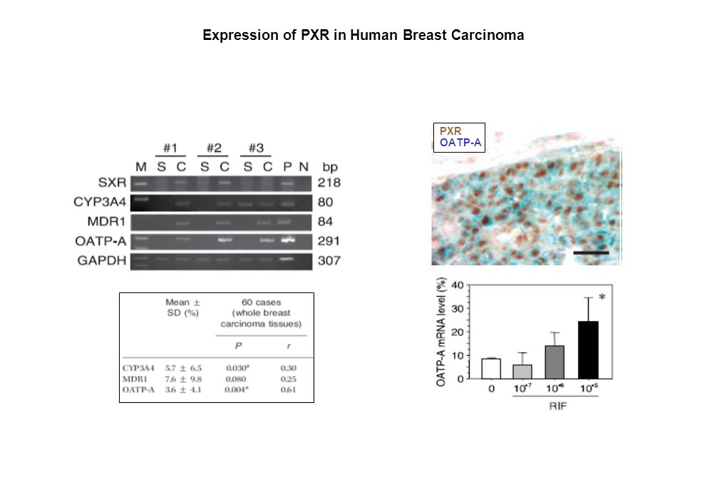 Expression of PXR in Human Breast Carcinoma PXR OATP-A Miki et al, Cancer Res 2006; 66: (1). January 1, 2006 LCM/RT-PCR (C) carcinoma cells (S) stroma