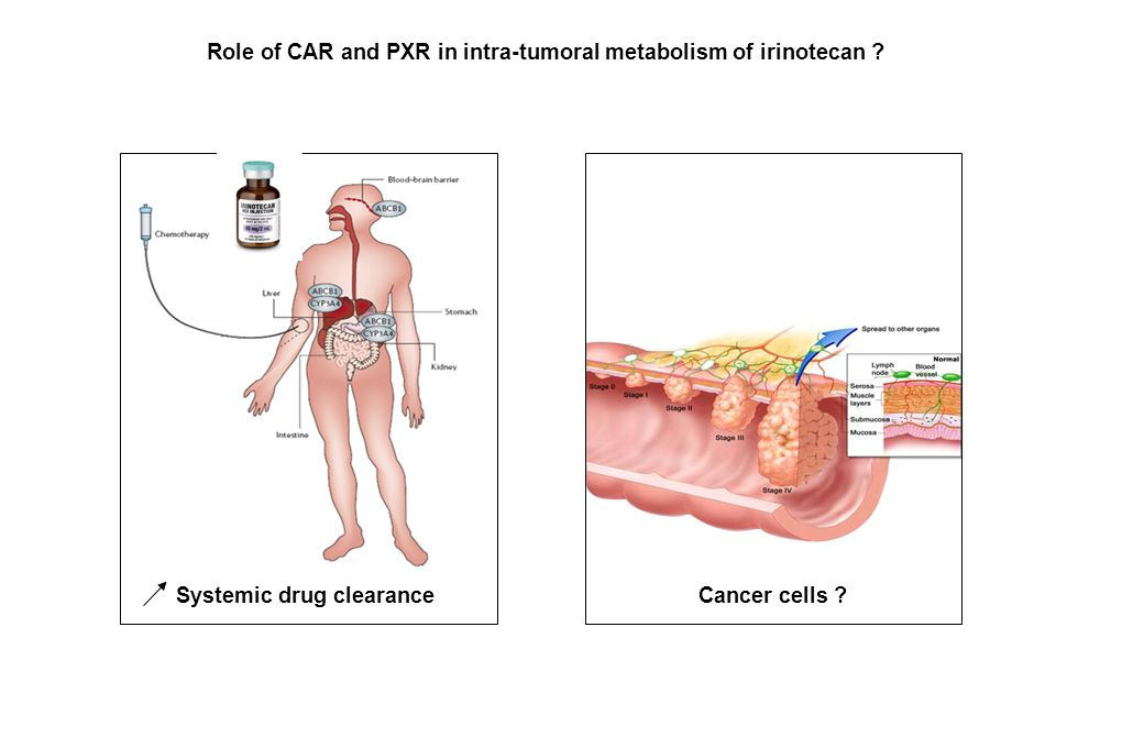 Systemic drug clearanceCancer cells ? Role of CAR and PXR in intra-tumoral metabolism of irinotecan ?