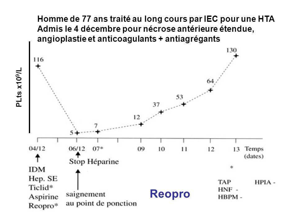 54 Homme de 77 ans traité au long cours par IEC pour une HTA Admis le 4 décembre pour nécrose antérieure étendue, angioplastie et anticoagulants + ant