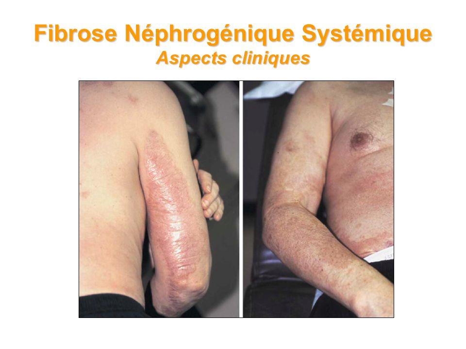 20 Fibrose Néphrogénique Systémique Aspects cliniques Plaques sclérotiques, avec calcinose à larrière et lavant du bras dun patient