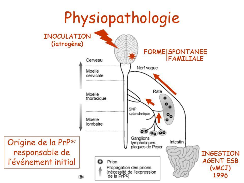 FORME SPONTANEE INOCULATION (iatrogène) INGESTION AGENT ESB (vMCJ) 1996 Physiopathologie Origine de la PrP sc responsable de lévénement initial FORME
