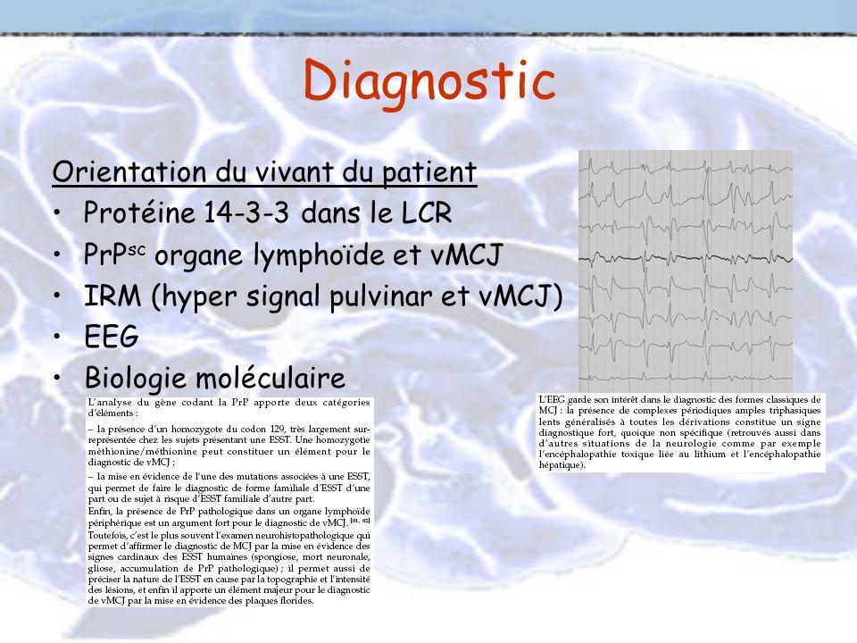 Diagnostic Orientation du vivant du patient Protéine 14-3-3 dans le LCR PrP sc organe lymphoïde et vMCJ IRM (hyper signal pulvinar et vMCJ) EEG Biolog
