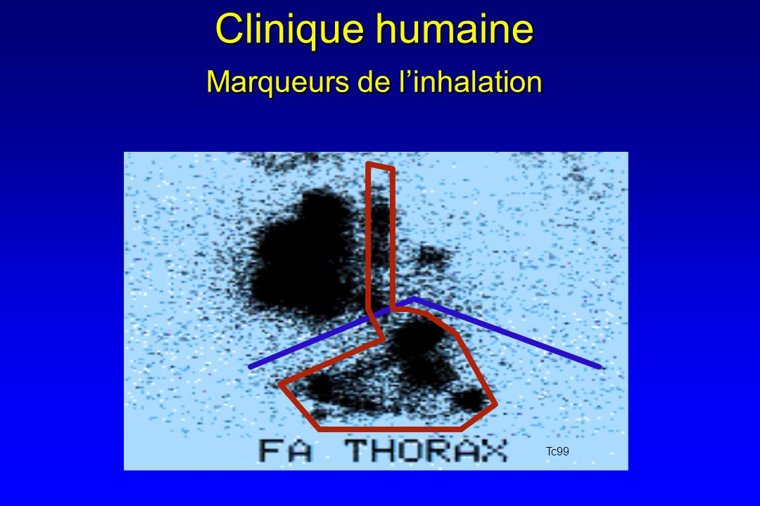 Clinique humaine Marqueurs de linhalation Tc99