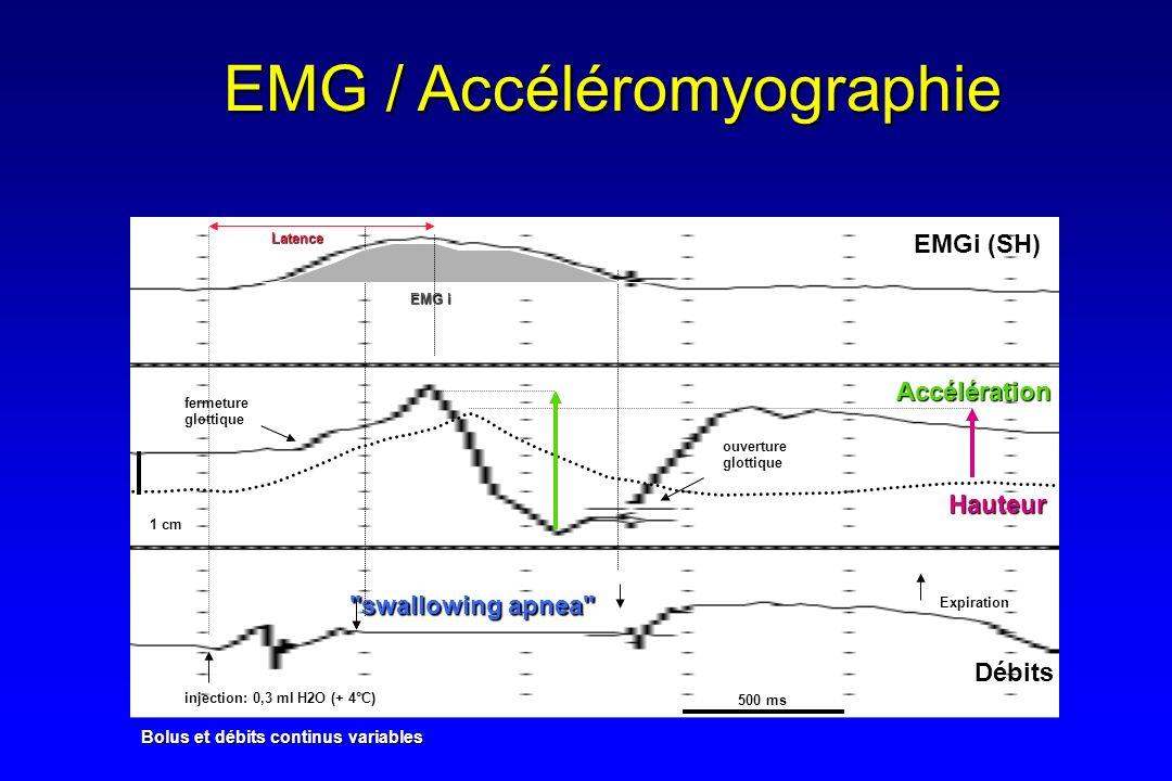 EMG / Accéléromyographie injection: 0,3 ml H2O (+ 4°C) Expiration