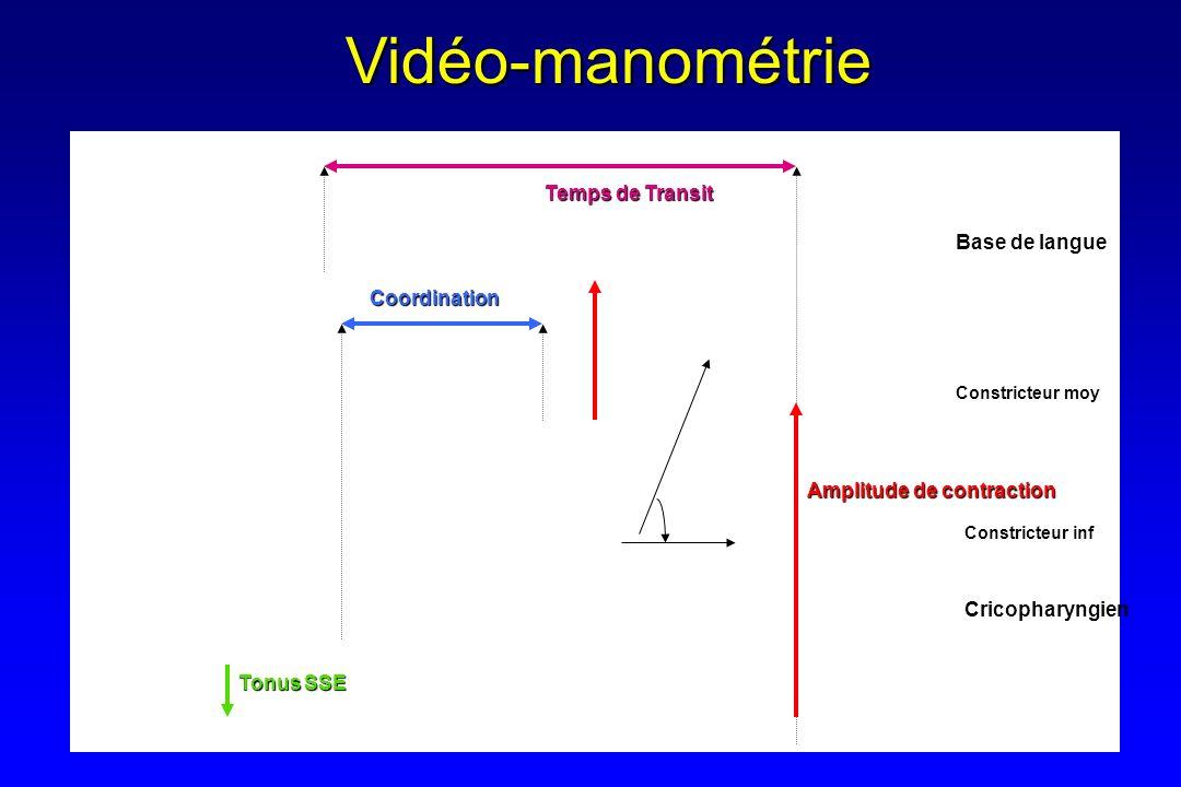Base de langue Constricteur moy CricopharyngienCoordinationVidéo-manométrie Temps de Transit Tonus SSE Amplitude de contraction Constricteur inf