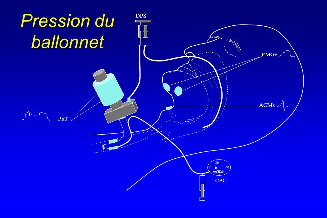 0 30 60 EMGe ACMs CPC PnT DPS cm H20 Pression du ballonnet