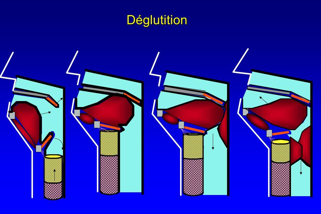 Troubles de la déglutition 4 grandes classes de lésions ou datteinte 4 grandes classes de lésions ou datteinte Groupe 1: lésions ou atteintes supra-nucléairesGroupe 1: lésions ou atteintes supra-nucléaires Mésencéphalique ou de la voie corticofuge Mésencéphalique ou de la voie corticofuge –AVC,TC, Agents de lanesthésie Groupe 2 : lésions ou atteintes du tronc cérébral ou des nerfs crâniensGroupe 2 : lésions ou atteintes du tronc cérébral ou des nerfs crâniens –AVC,TC, Agents de lAnesthésie Groupe 3 : Atteintes des muscles impliqués dans la déglutitionGroupe 3 : Atteintes des muscles impliqués dans la déglutition –Myopathie, Neuro-myopathie, Curares Groupe 4 : Atteinte périphérique des organes impliqués dans la déglutitionGroupe 4 : Atteinte périphérique des organes impliqués dans la déglutition Exérèse chirurgicale lors de la chirurgie reconstructrice tumorale Exérèse chirurgicale lors de la chirurgie reconstructrice tumorale Lésions laryngée de lintubation trachéale Lésions laryngée de lintubation trachéale Troubles mécaniques liés à la trachéostomie Troubles mécaniques liés à la trachéostomie –Modification profonde de la biomécanique –Modification de la dynamique –Altération de la perception (IOT, SNG, Mucite) –Défaut de propulsion (ancrage du larynx par le ballonnet de la canule), de protrusion –Déficit de fermeture de la glotte 1 Symptome = dysphagie 1 Symptome = dysphagie
