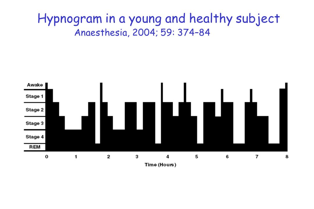 Anaesthesia, 2004; 59: 374–84 Hypnogram in a young and healthy subject