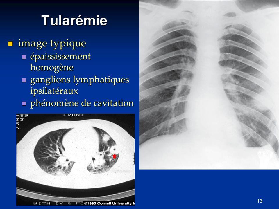 13 Tularémie image typique image typique épaississement homogène épaississement homogène ganglions lymphatiques ipsilatéraux ganglions lymphatiques ipsilatéraux phénomène de cavitation phénomène de cavitation