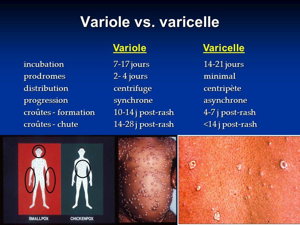 Variole vs. varicelle incubation7-17 jours14-21 jours prodromes2- 4 joursminimal distribution centrifugecentripète progressionsynchroneasynchrone croû