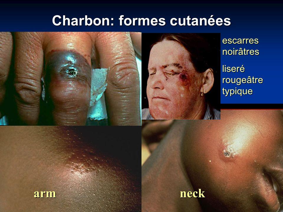 Charbon: formes cutanées escarres noirâtres liseré rougeâtre typique armneck