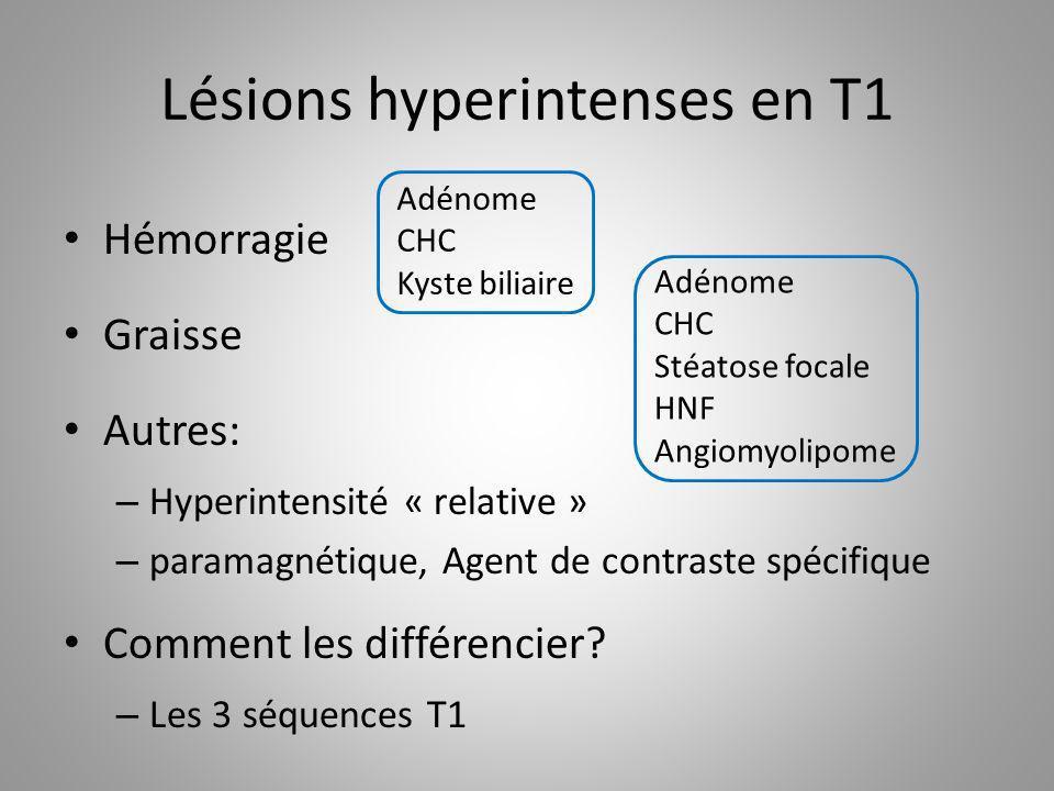 Lésions hyperintenses en T1 Hémorragie Graisse Autres: – Hyperintensité « relative » – paramagnétique, Agent de contraste spécifique Comment les diffé