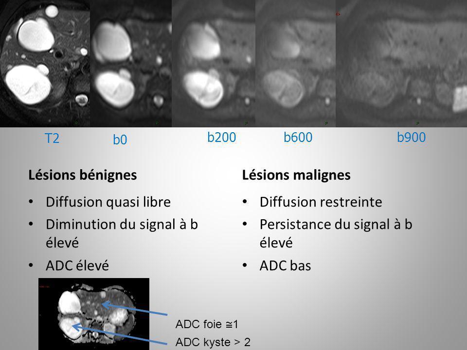b0 T2 b900b600b200 Lésions bénignes Diffusion quasi libre Diminution du signal à b élevé ADC élevé Lésions malignes Diffusion restreinte Persistance d