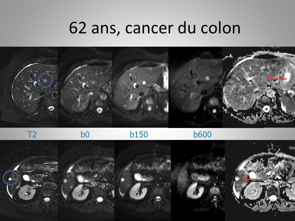 62 ans, cancer du colon b0b150b600T2