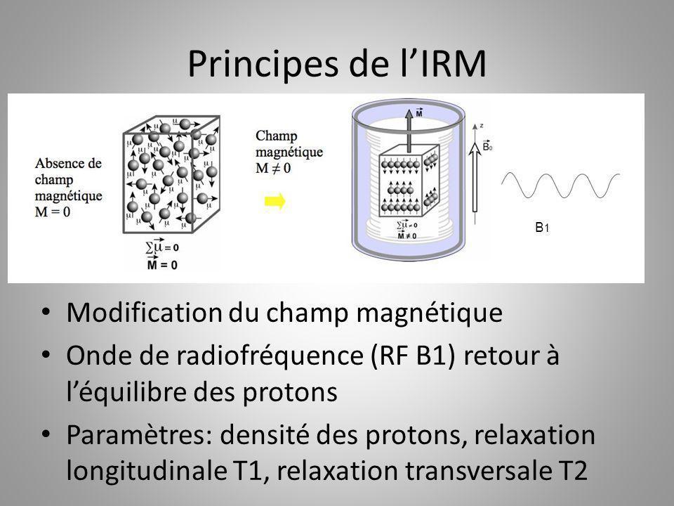 Principes de lIRM Modification du champ magnétique Onde de radiofréquence (RF B1) retour à léquilibre des protons Paramètres: densité des protons, rel