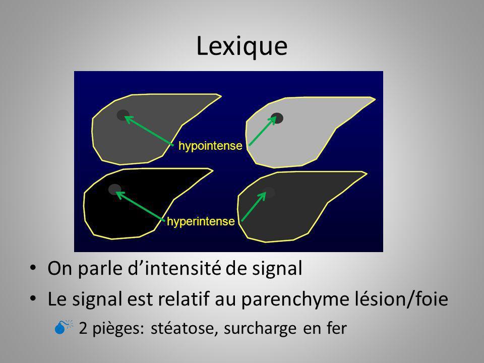 Lexique On parle dintensité de signal Le signal est relatif au parenchyme lésion/foie 2 pièges: stéatose, surcharge en fer hypointense hyperintense
