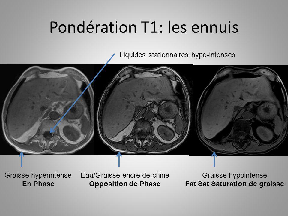 Pondération T1: les ennuis Liquides stationnaires hypo-intenses Graisse hyperintense En Phase Eau/Graisse encre de chine Opposition de Phase Graisse h
