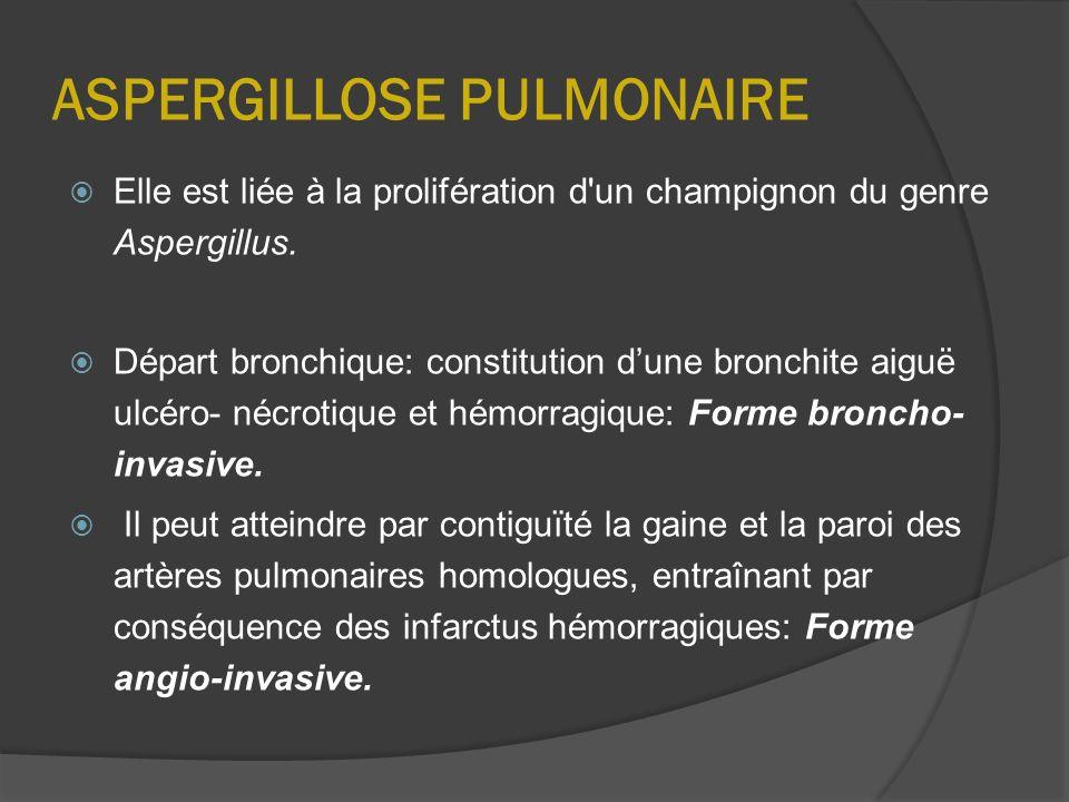 ASPERGILLOSE PULMONAIRE Elle est liée à la prolifération d'un champignon du genre Aspergillus. Départ bronchique: constitution dune bronchite aiguë ul