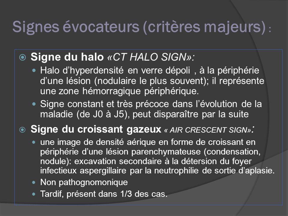 Signes évocateurs (critères majeurs) : Signe du halo «CT HALO SIGN»: Halo dhyperdensité en verre dépoli, à la périphérie dune lésion (nodulaire le plu