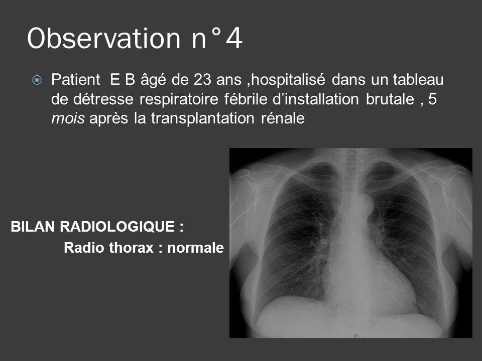 Observation n°4 BILAN RADIOLOGIQUE : Radio thorax : normale Patient E B âgé de 23 ans,hospitalisé dans un tableau de détresse respiratoire fébrile din