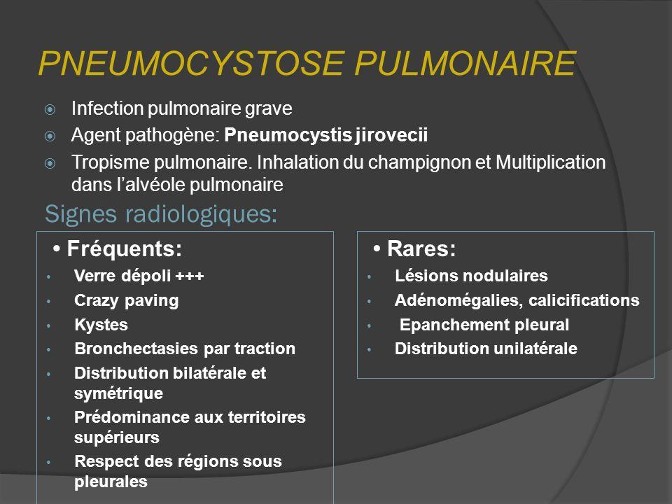 PNEUMOCYSTOSE PULMONAIRE Infection pulmonaire grave Agent pathogène: Pneumocystis jirovecii Tropisme pulmonaire. Inhalation du champignon et Multiplic