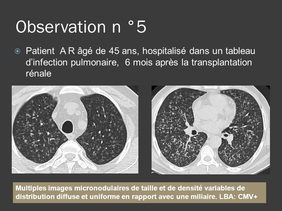 Observation n °5 Patient A R âgé de 45 ans, hospitalisé dans un tableau dinfection pulmonaire, 6 mois après la transplantation rénale Multiples images