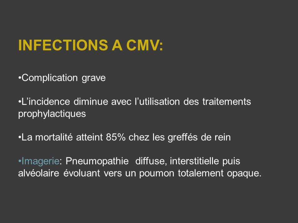 INFECTIONS A CMV: Complication grave Lincidence diminue avec lutilisation des traitements prophylactiques La mortalité atteint 85% chez les greffés de