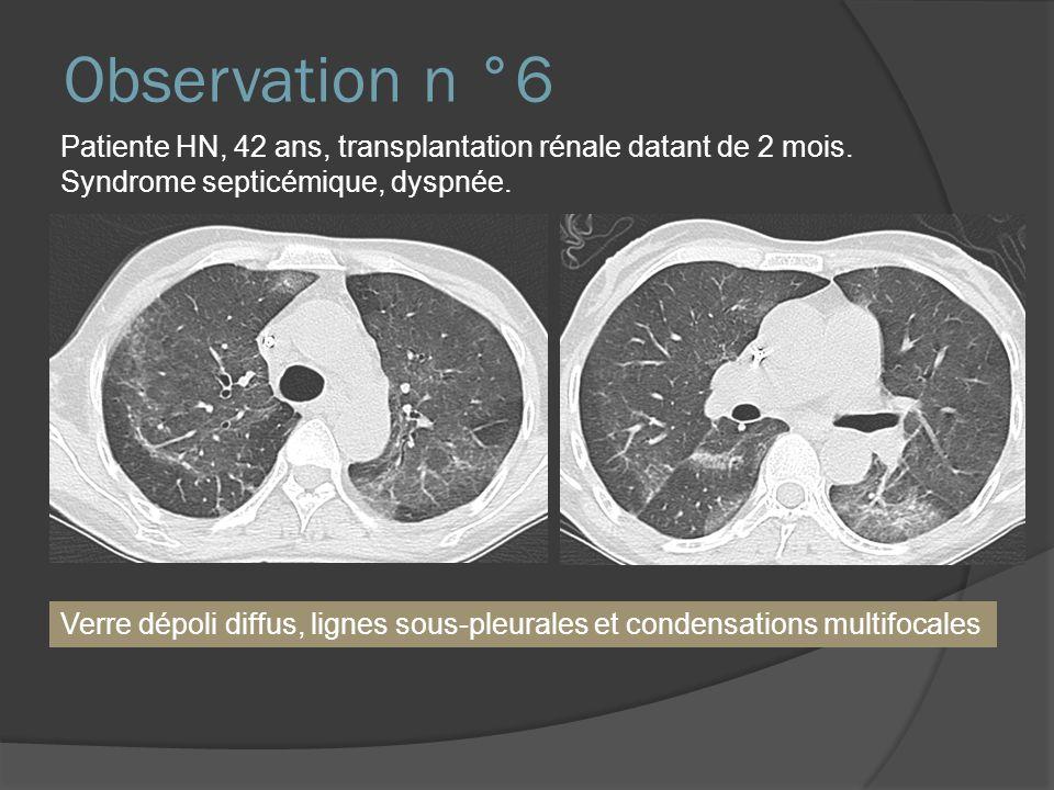 Observation n °6 Patiente HN, 42 ans, transplantation rénale datant de 2 mois. Syndrome septicémique, dyspnée. Verre dépoli diffus, lignes sous-pleura