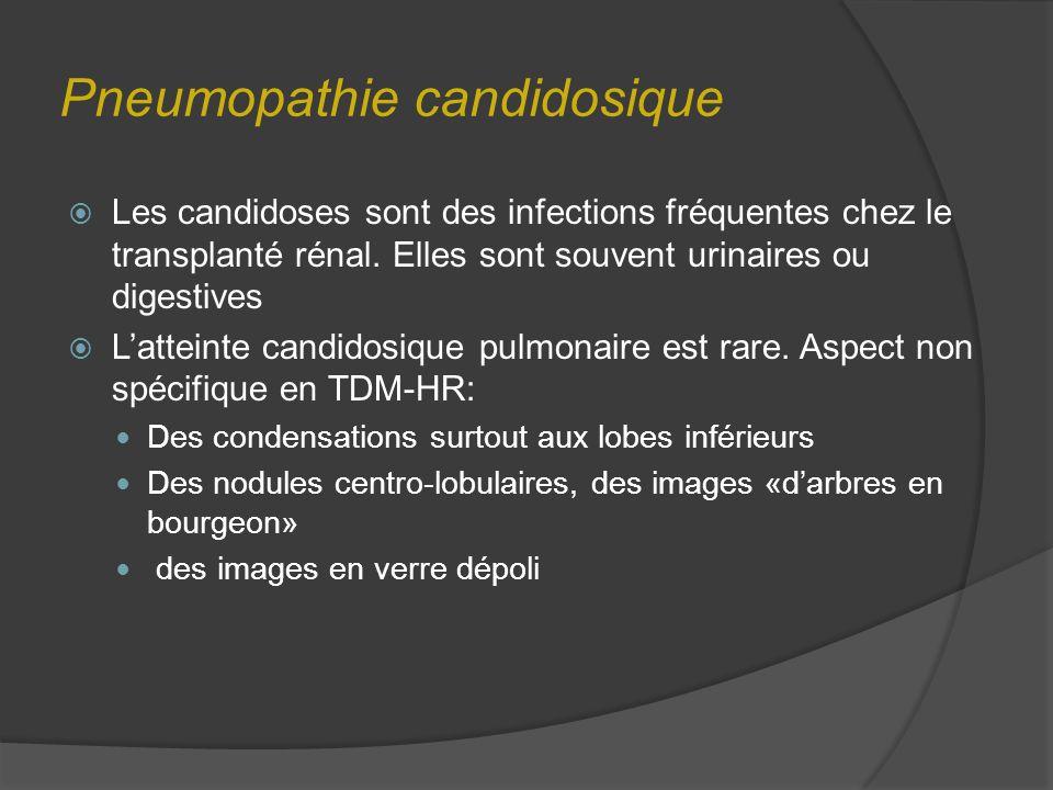 Pneumopathie candidosique Les candidoses sont des infections fréquentes chez le transplanté rénal. Elles sont souvent urinaires ou digestives Latteint