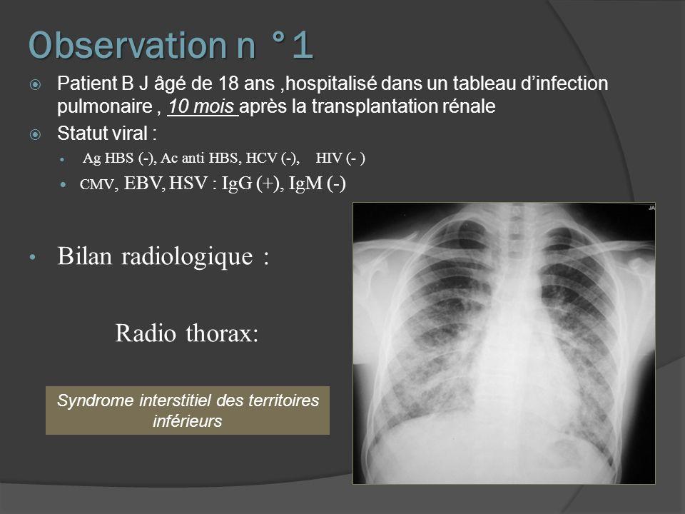 Observation n °1 Patient B J âgé de 18 ans,hospitalisé dans un tableau dinfection pulmonaire, 10 mois après la transplantation rénale Statut viral : A