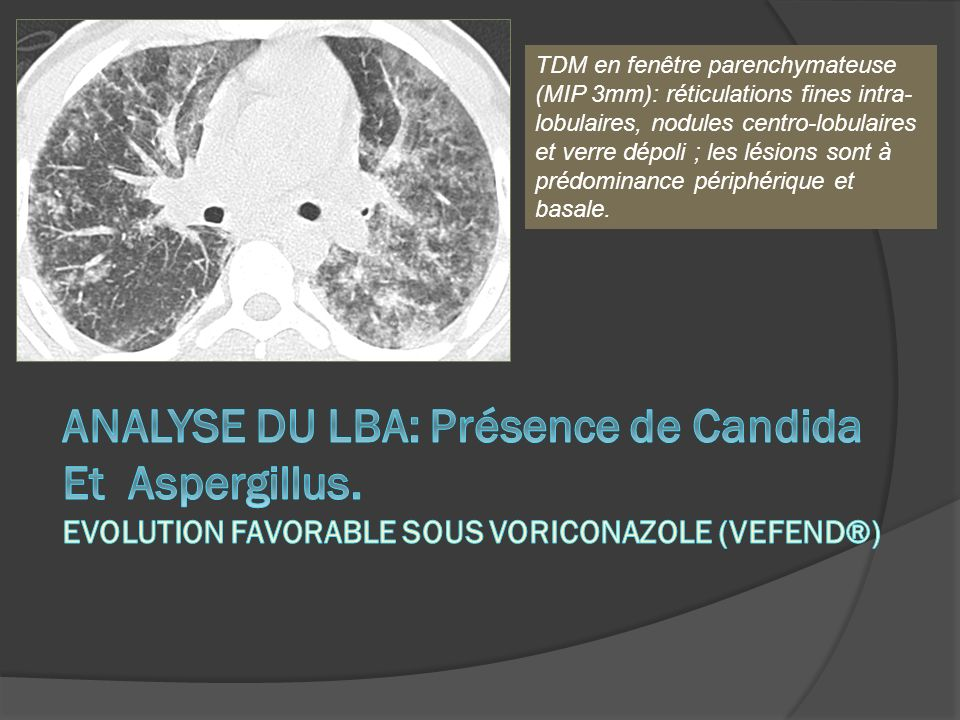 TDM en fenêtre parenchymateuse (MIP 3mm): réticulations fines intra- lobulaires, nodules centro-lobulaires et verre dépoli ; les lésions sont à prédom