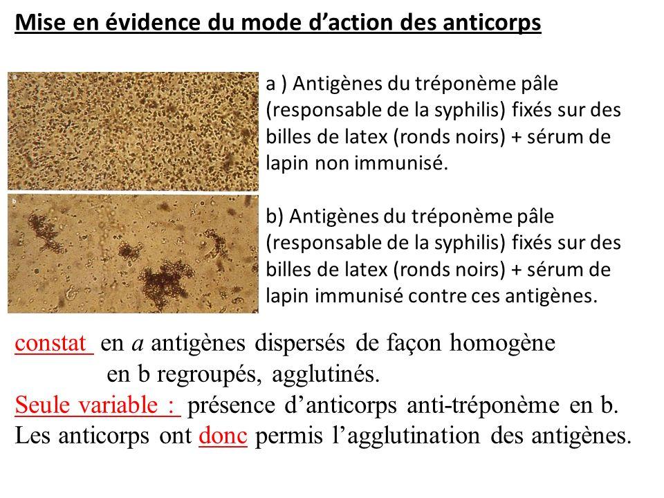 constat en a antigènes dispersés de façon homogène en b regroupés, agglutinés. Seule variable : présence danticorps anti-tréponème en b. Les anticorps