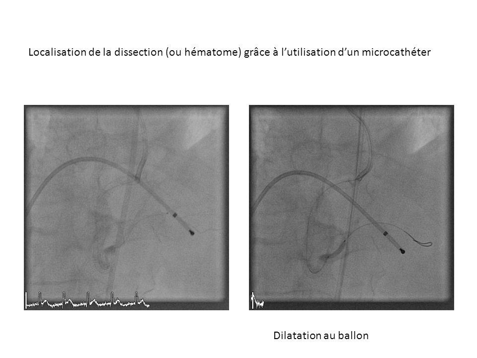Dilatation au ballon Localisation de la dissection (ou hématome) grâce à lutilisation dun microcathéter