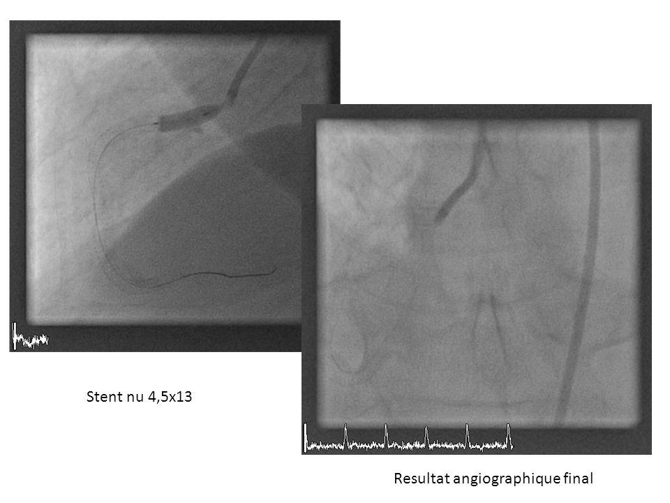 Resultat angiographique final Stent nu 4,5x13