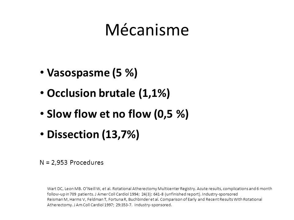 Mécanisme Vasospasme (5 %) Occlusion brutale (1,1%) Slow flow et no flow (0,5 %) Dissection (13,7%) Wart DC, Leon MB. ONeill W, et al. Rotational Athe