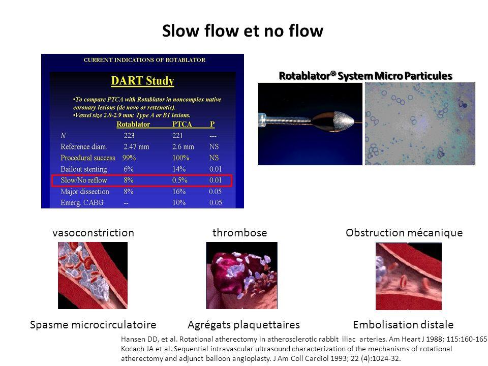 Prévention Temps de fraisage < 30 sec Ratio fraise / artère à 0,6 (< 0,7) Flush Cocktail -Nicorandil (Nicorandil 24 mg + nitroglycerine 5 mg + héparine 1000UI dans 1 l de Nacl) -Nicardipine (10μg/ml) + Adenosine 51 μg/ml Prise en charge des complication Slow flow/no flow From Pg 247-248, Guide to Rotational Atherectomy.
