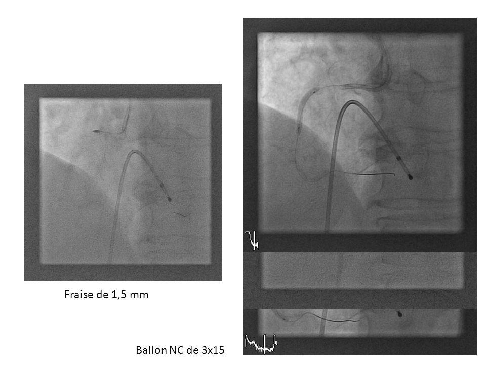 DES 3,5 x 38 CD2DES 4 x 28 positionné en amont (CD1)