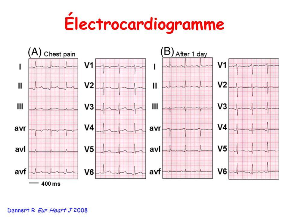 Électrocardiogramme Dennert R Eur Heart J 2008