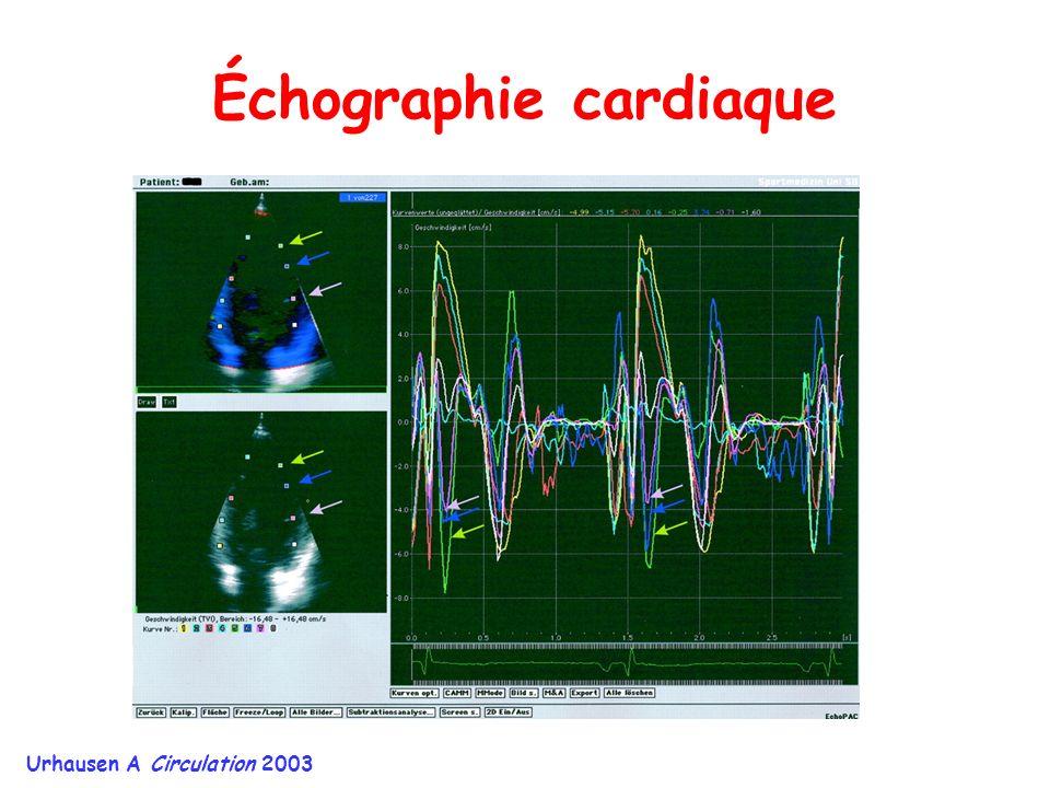 Échographie cardiaque Urhausen A Circulation 2003