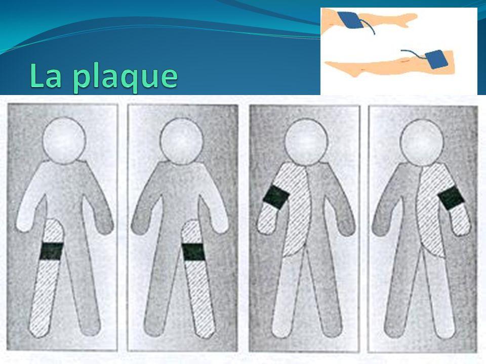 - Fonction - Caractéristiques de la plaque électrochirurgicale - Localisation de la plaque électrochirurgicale Protocoles de pose Positionnement usuel