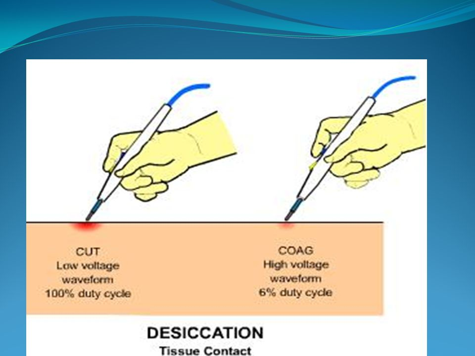 - La section électrochirurgicale - La fulguration - La dessiccation