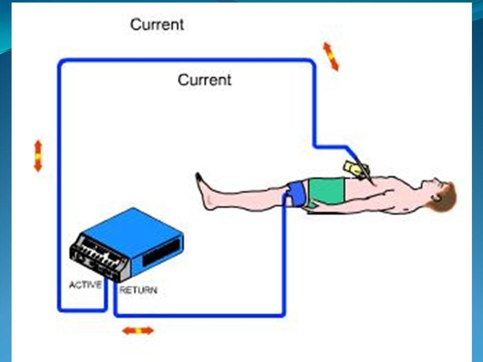 - Emergence de nouvelles techniques - Méthode la plus utilisée en salle dopération - Polyvalence - Fiabilité - Efficacité - Sécurité